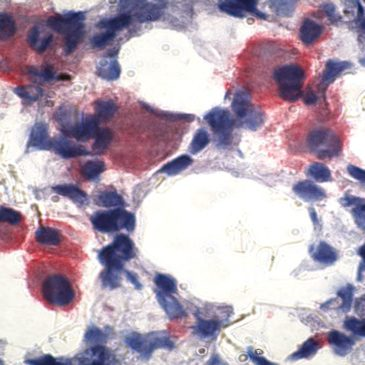 Immunohistochemical Staining of Dendritic Cells