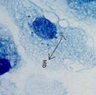 Acid Fast Bacterial Staining